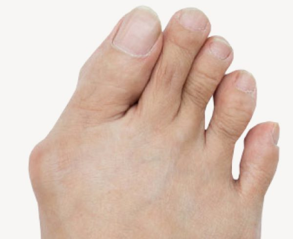 bunion-foot